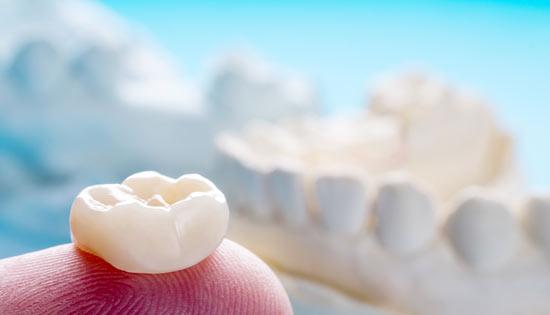 coronas dentales esteticas
